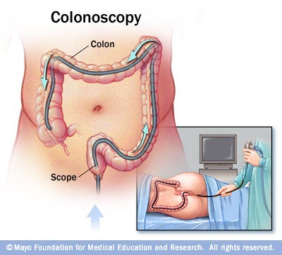 Colonoscopy Time (1/3)