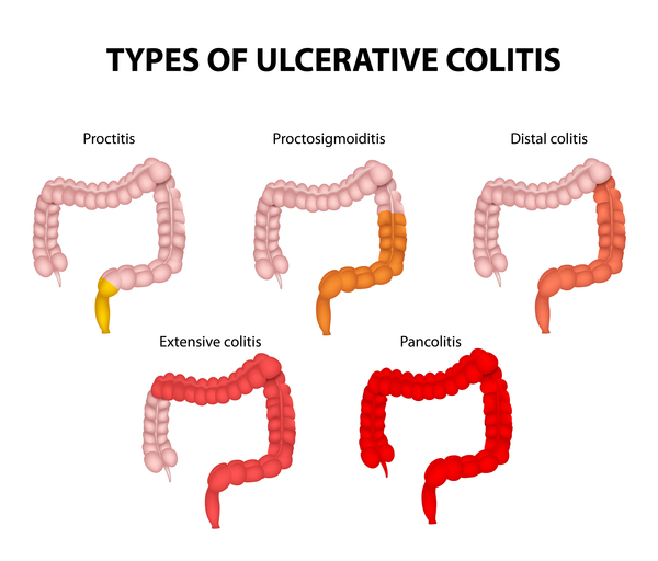 forms-of-ulcerative-colitis